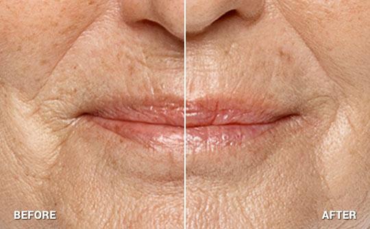Palm Beach South Florida Dermatologists - Restylane Silk