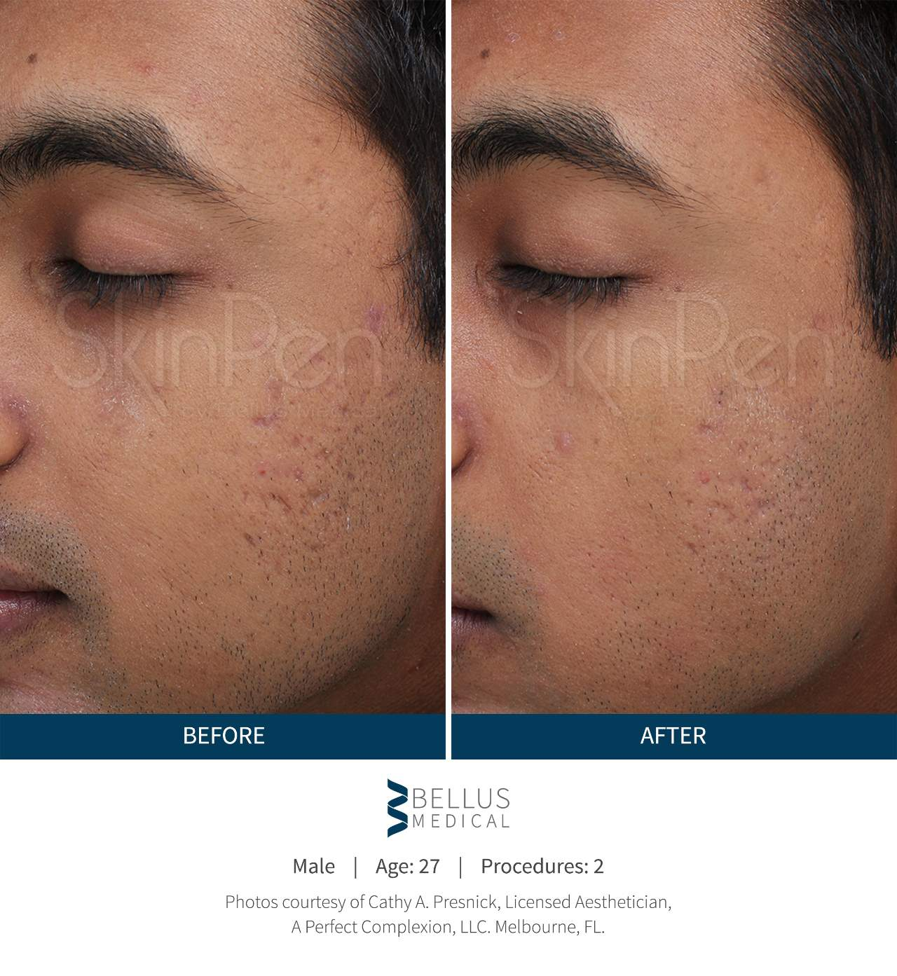 Smoker's Lines and Facial Lines - Steven M  Hacker, MD PA d